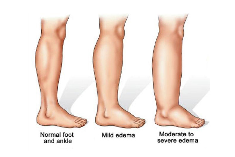 lymphedema clinic in montreal
