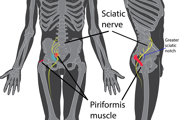 Sciatic Nerve Treatment in Montreal