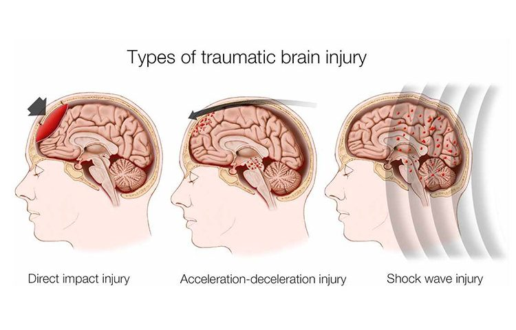 Types of Traumatic Brain Injury