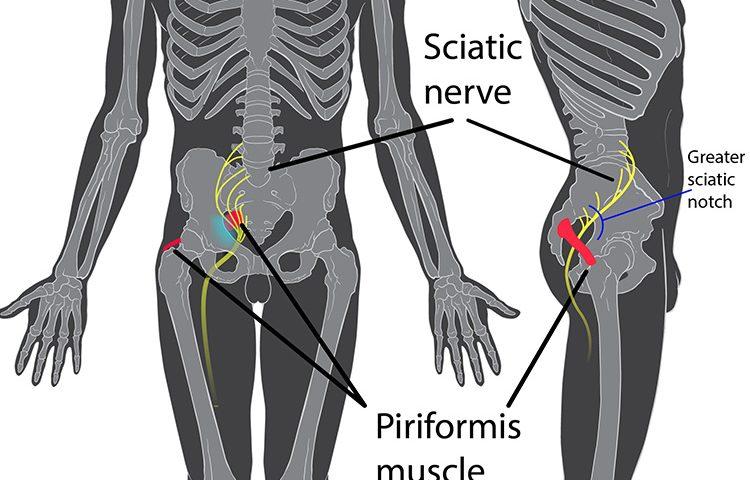 Sciatic Nerve Treatment in Montreal