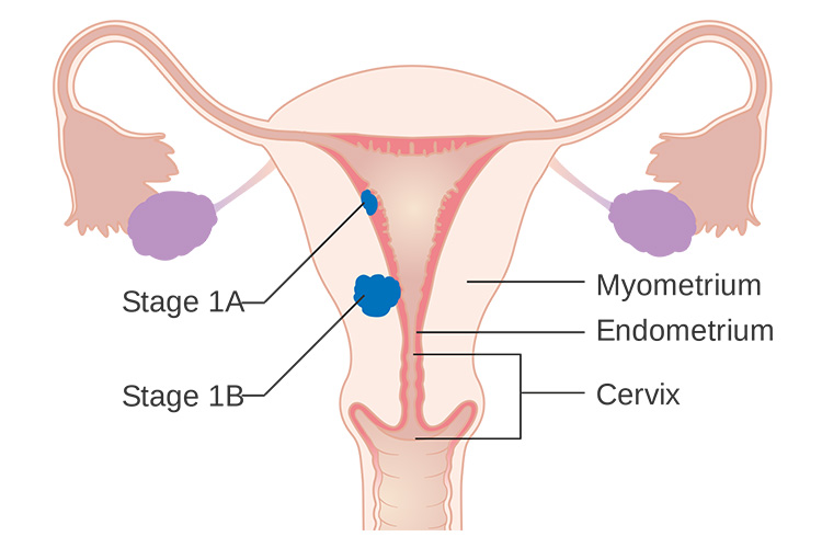Montreal Lymphedema Clinic for Uterine Cancer
