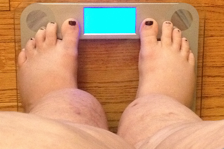 Obesity and Lymphedema - Can Lymphatic Massage help?